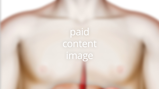 Paid content (image)