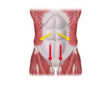 Bauchdeckenverschluss - Techniken: Schlingennaht und \