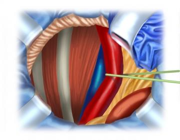 Nierentransplantation rechts - webop | Multimediale Operationslehre