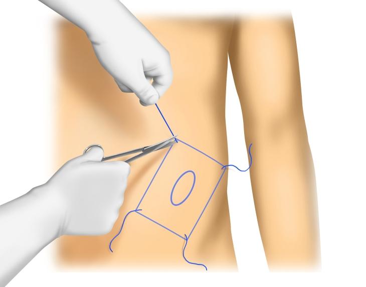 spiegelsche hernie operation